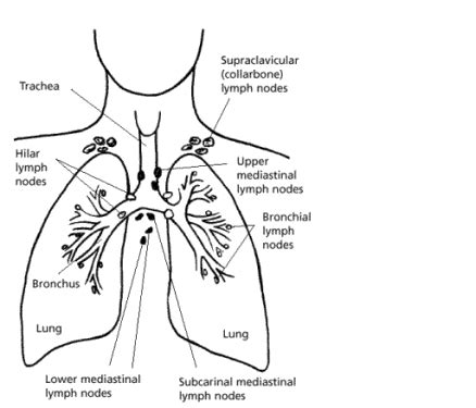 Cause and effect essay on lung cancer